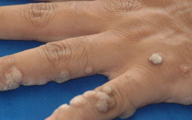 veruci sifilitice largi detoxifierea ficatului si colonului