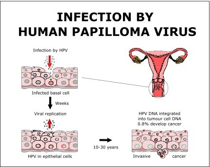 hpv that causes cancer symptoms