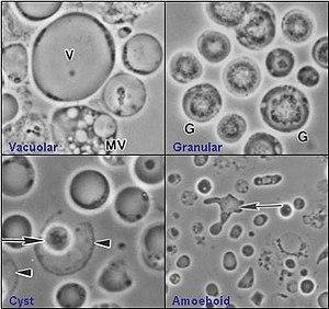 giardia și ameba)