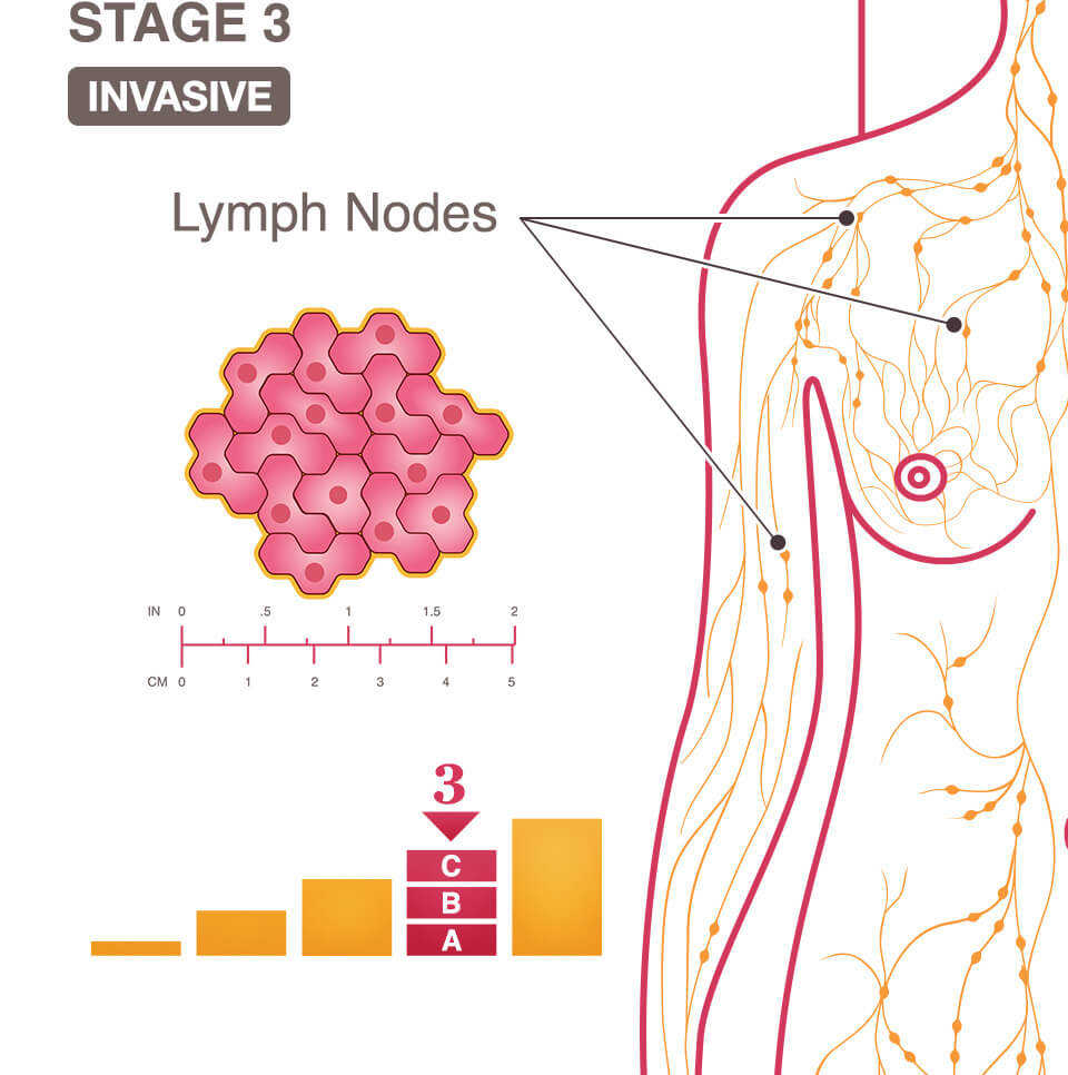 metastatic cancer lymph nodes prognosis)