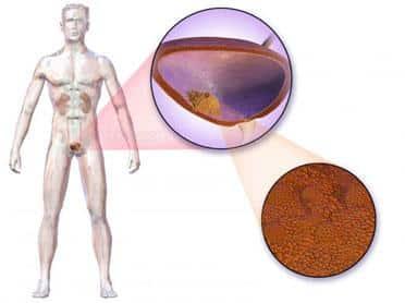 simptome cancer de vezica urinara papillomavirus infection papilloma