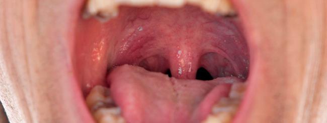 vph en la boca primeros sintomas