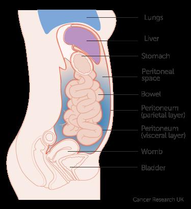 peritoneal cancer brca)