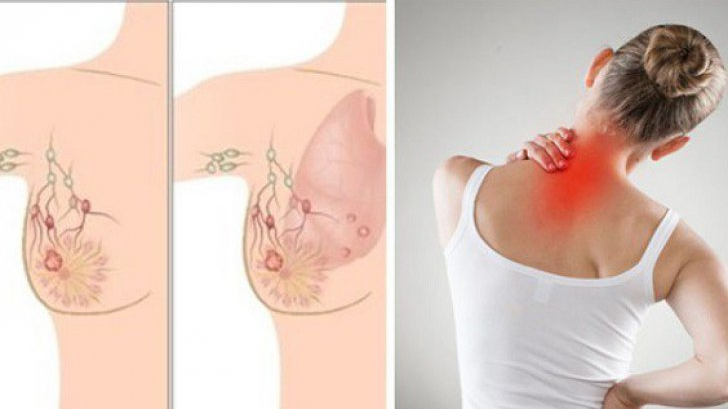 cancer mamar inflamator tratament)
