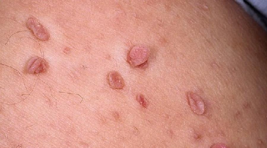 verucile genitale agent cauzal