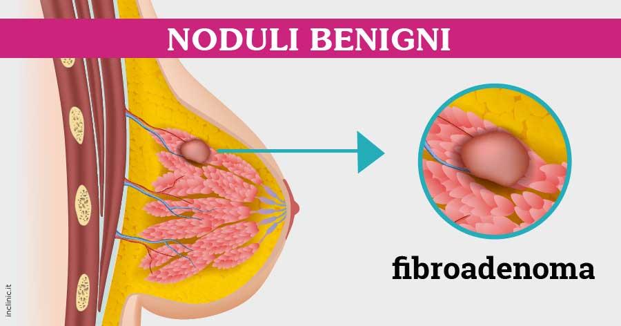 papiloma al seno cum se infectează negii