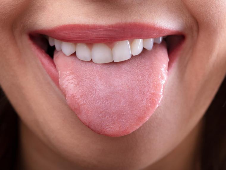 como detectar papiloma en la boca)