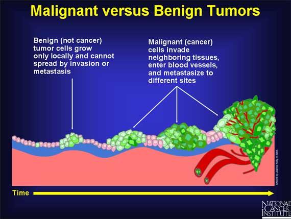 benign cancer symptoms