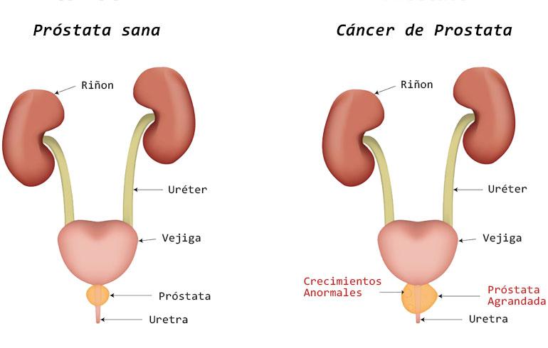 cancer en uretra