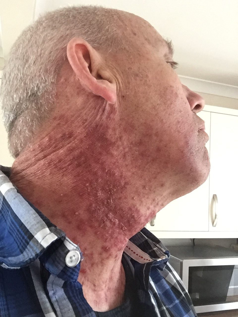 cancer hpv neck)