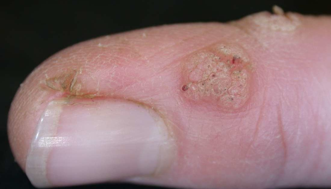 warts on my hands and feet)