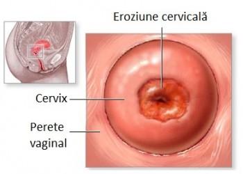 condiloame și eroziune cervicală