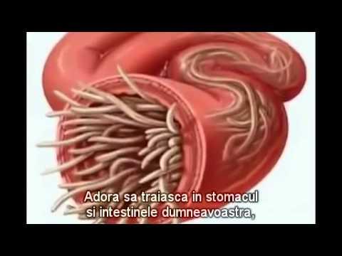 simptome de helmint în organism