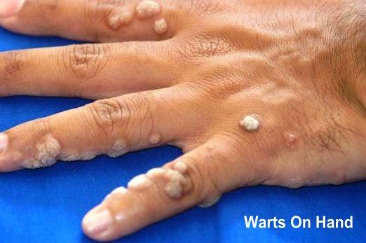 Fișier:Papilloma Virus (HPV) triplus.ro - Wikipedia