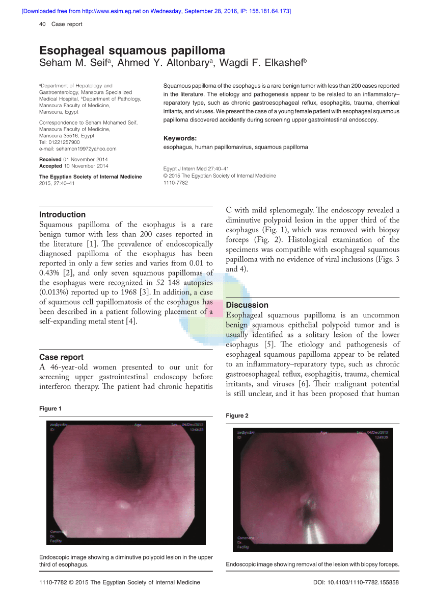 esophageal polyp squamous papilloma)