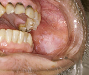 squamous papilloma mouth icd 10