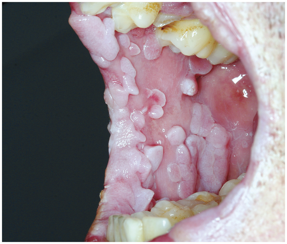 Hpv papilloma in throat - Hpv mouth throat