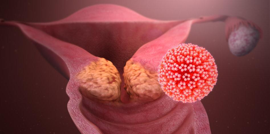 papillomatosis chest x ray ce sunt papilomii pe față