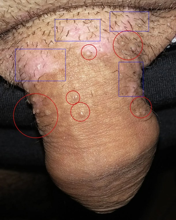 lesion hpv homme)