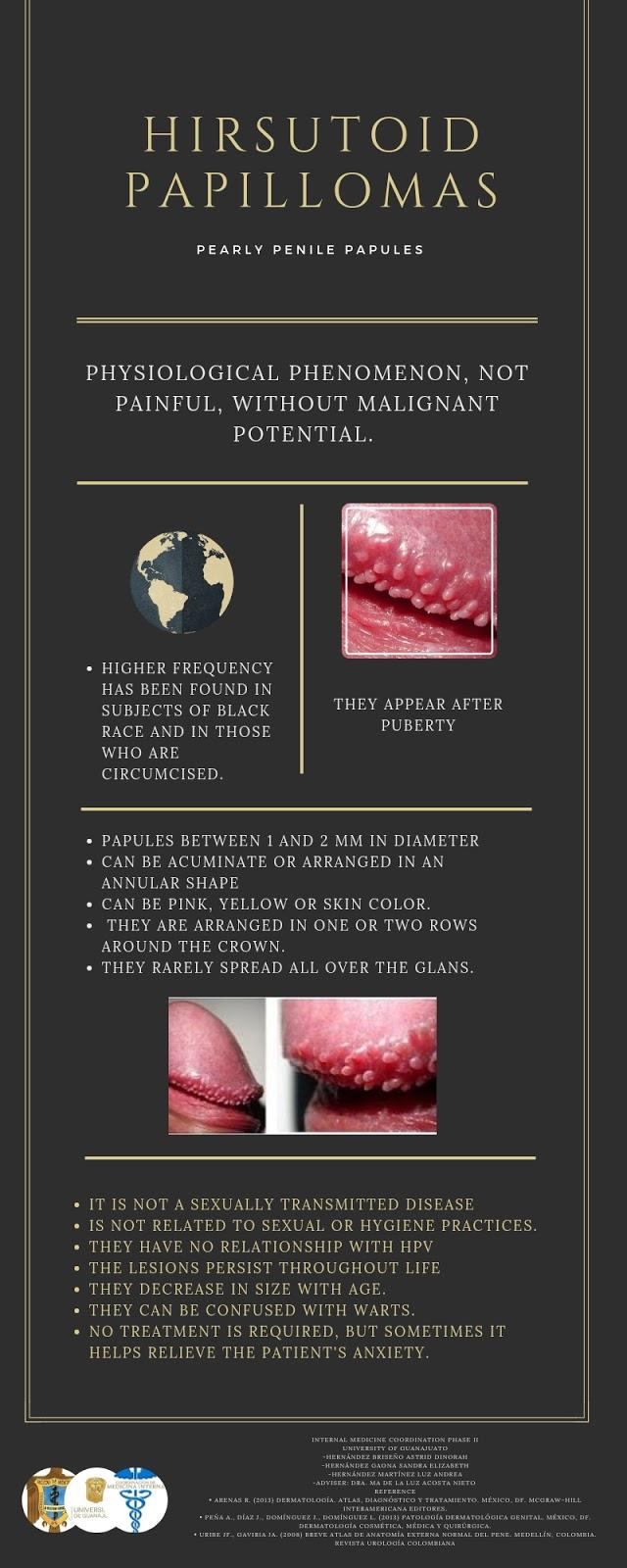 papiloma hirsutoide definicion boli dentare