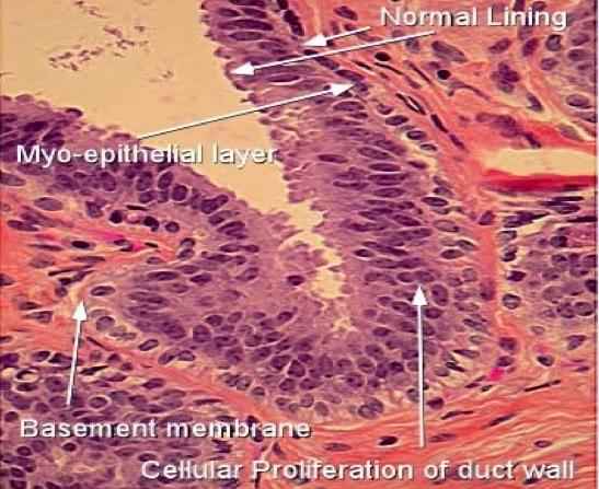 Human papillomavirus - Variola de vită - Is intraductal papilloma related to hpv