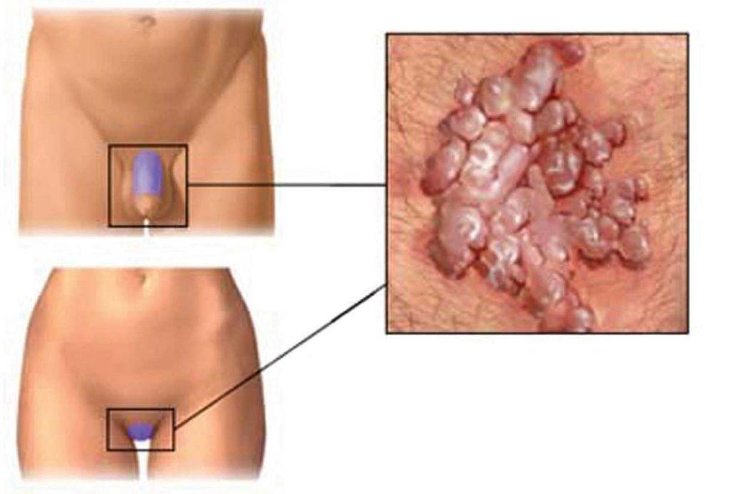 papilloma virus pelle