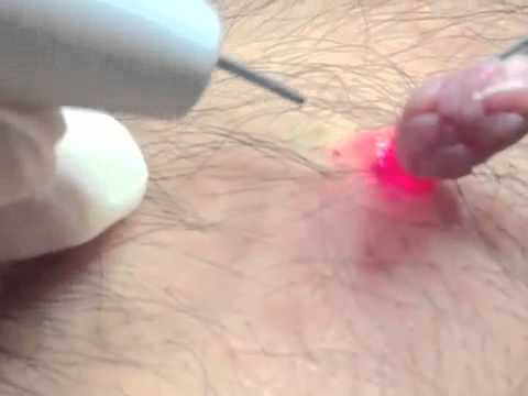 togliere papilloma pendulo)