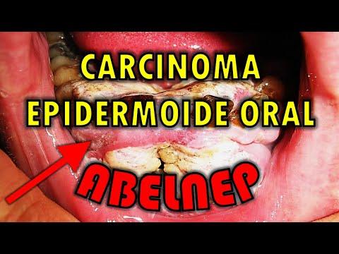 cancer epidermoide bucal)