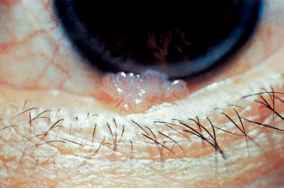 papilloma of conjunctiva)