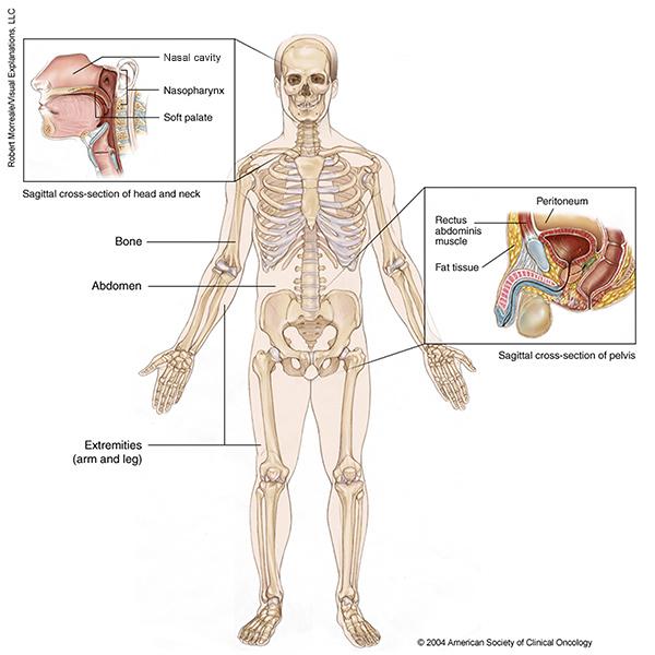 Cancer sarcoma de tejidos blandos, Încărcat de Cancer sarcoma tipos