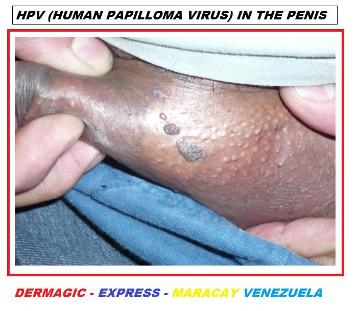 hpv dark skin