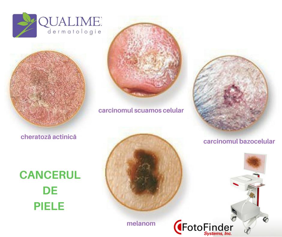 cancer piele scuamos)