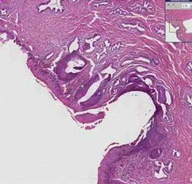 que es papiloma metaplasia)