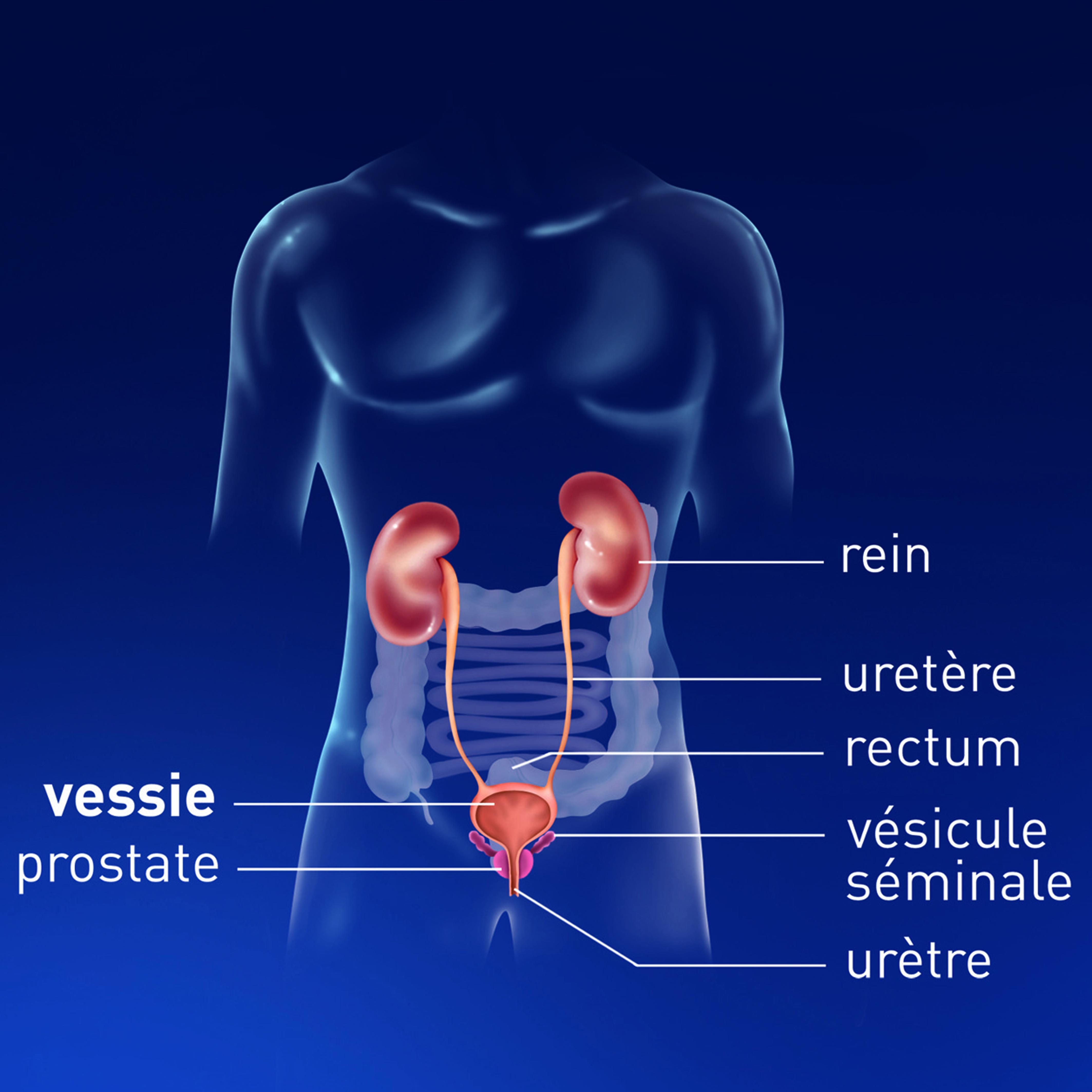 Cancer feminin de la vessie - Traducere