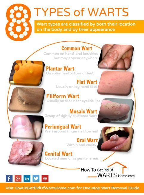 Hpv genital warts vs herpes Hpv warts vs herpes