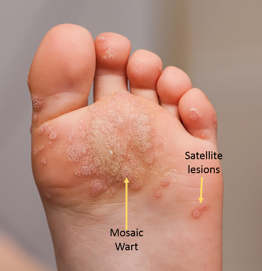wart on foot cancer)
