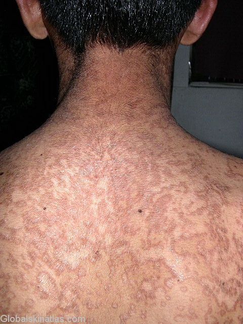 confluent and reticulated papillomatosis treatment)