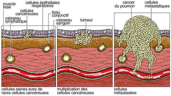 cancer tumeur maligne
