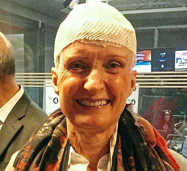 cancer cap treatment