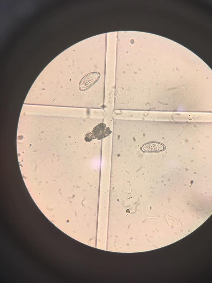 paraziți în microscopul urinei papillomavirus buccal homme