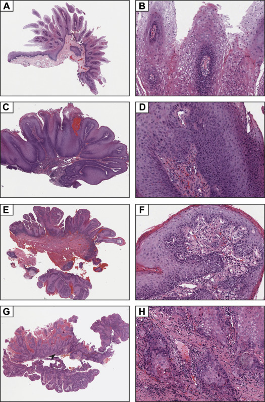 gingival papilloma histology