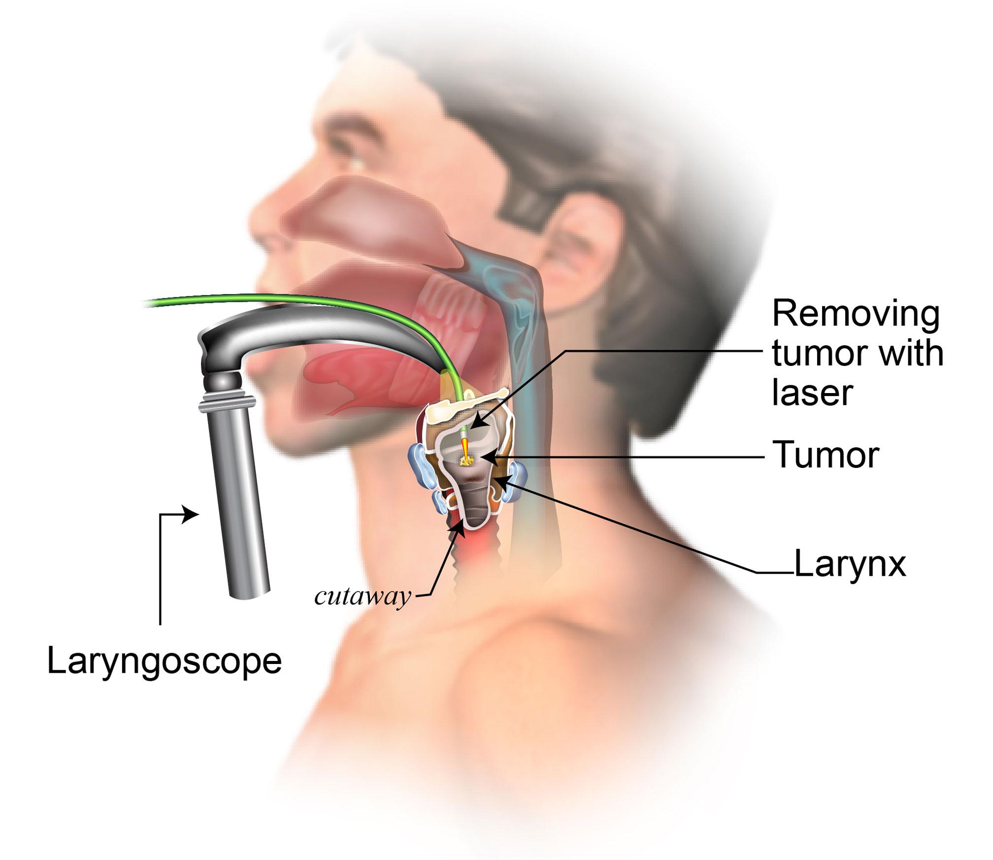 Helmintox effets indesirables Tratamentul helmintelor din corpul uman