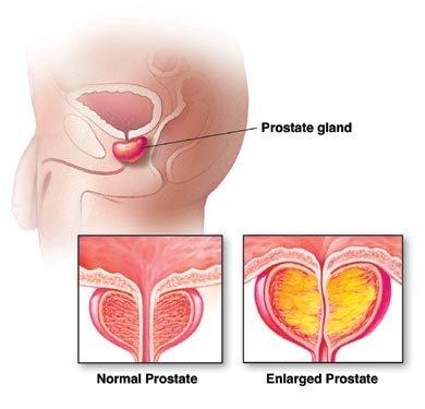 cancer de vezica urinara la barbati tratament)