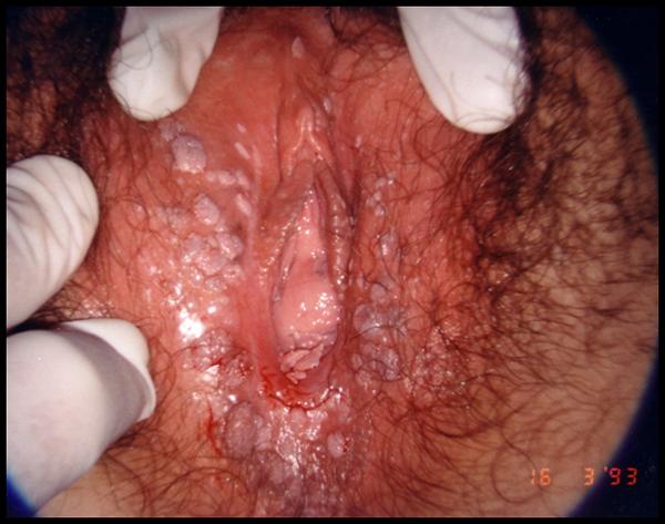 papilloma virus incubazione