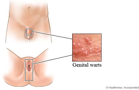 Urinary dysbiosis, triplus.ro (6/) by Versa Media - Issuu