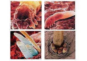 yuz paraziti tedavisi