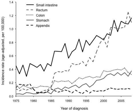 neuroendocrine cancer survival rates)