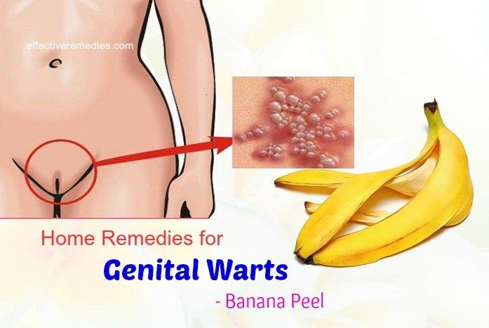 hpv warts cure natural)
