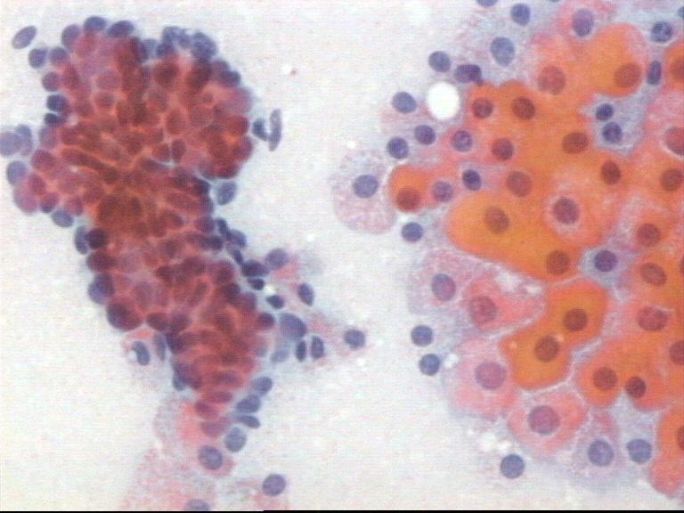 papiloma intraductal com metaplasia apocrina hpv lip treatment