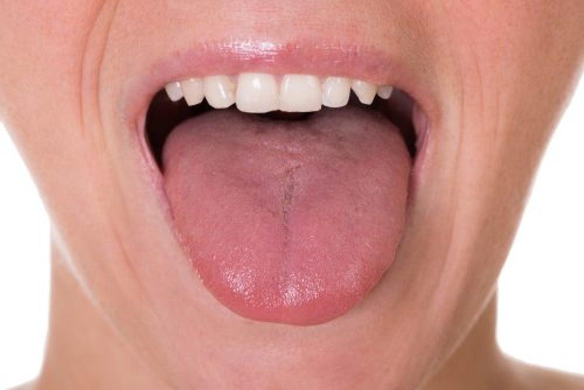 Come si attacca il papilloma virus, Papilloma virus bocca incubazione